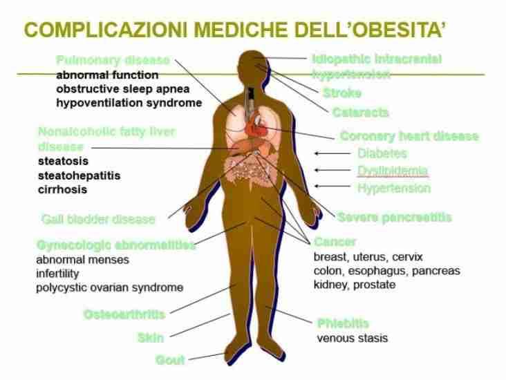 Obesità e complicazioni mediche dell'eccesso ponderale..